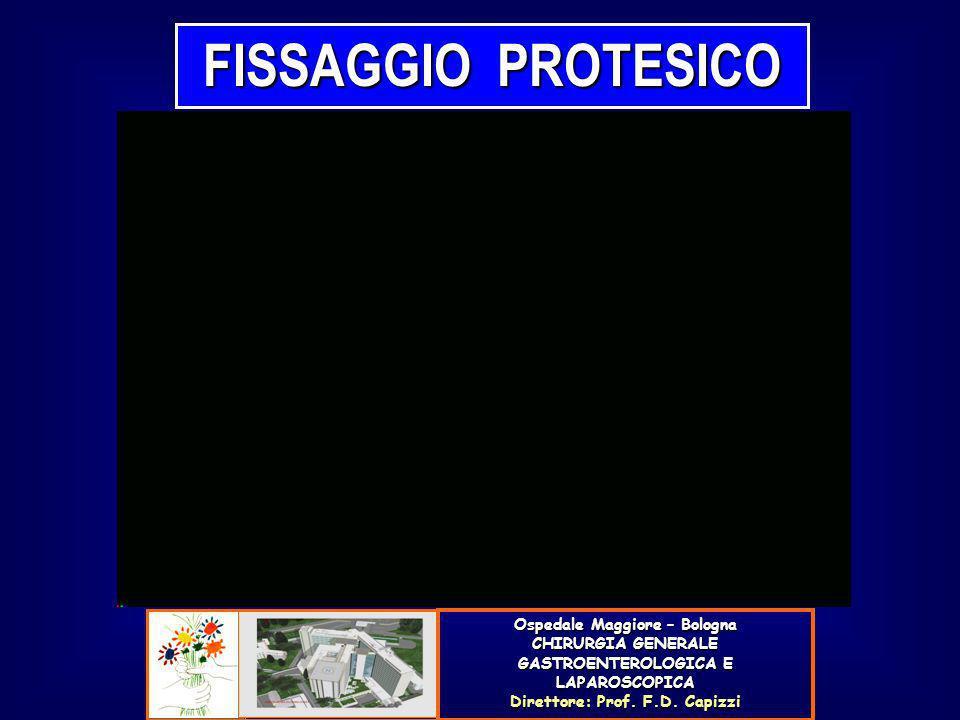 FISSAGGIO PROTESICO Ospedale Maggiore – Bologna CHIRURGIA GENERALE GASTROENTEROLOGICA E LAPAROSCOPICA Direttore: Prof. F.D. Capizzi