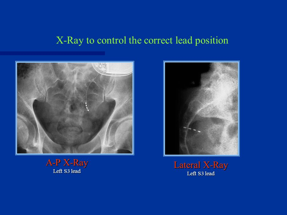X-Ray to control the correct lead position A-P X-Ray Left S3 lead Lateral X-Ray Left S3 lead