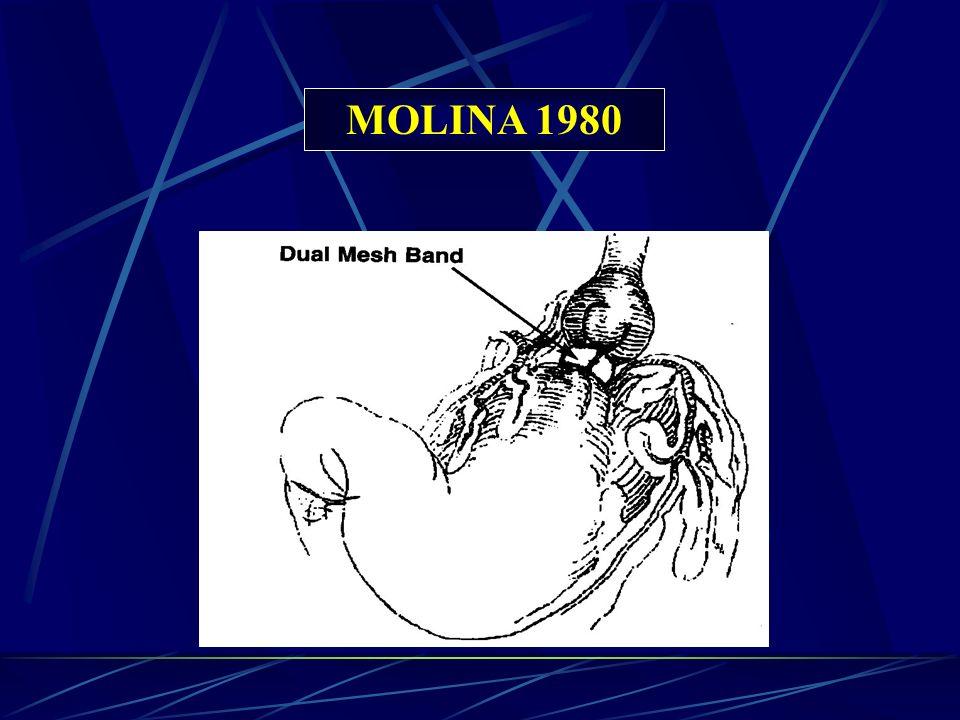 MOLINA 1980
