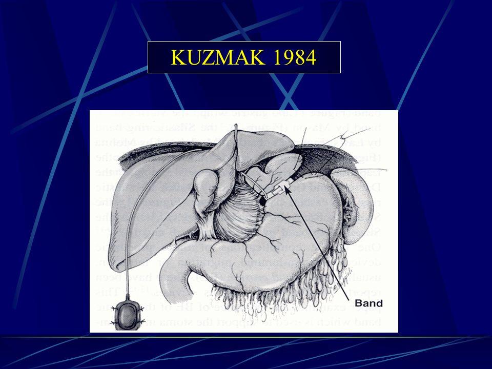KUZMAK 1984