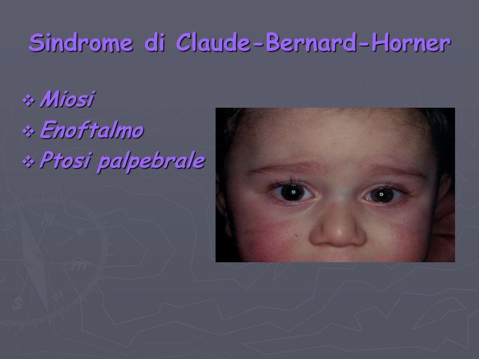 Sindrome di Claude-Bernard-Horner Miosi Miosi Enoftalmo Enoftalmo Ptosi palpebrale Ptosi palpebrale