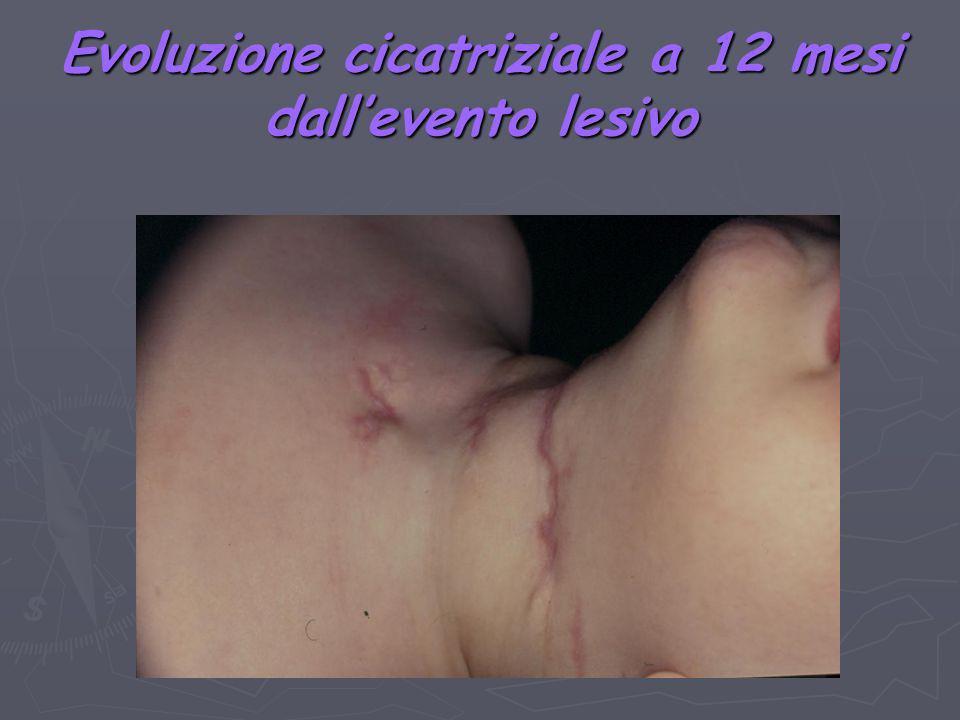 Evoluzione cicatriziale a 12 mesi dallevento lesivo