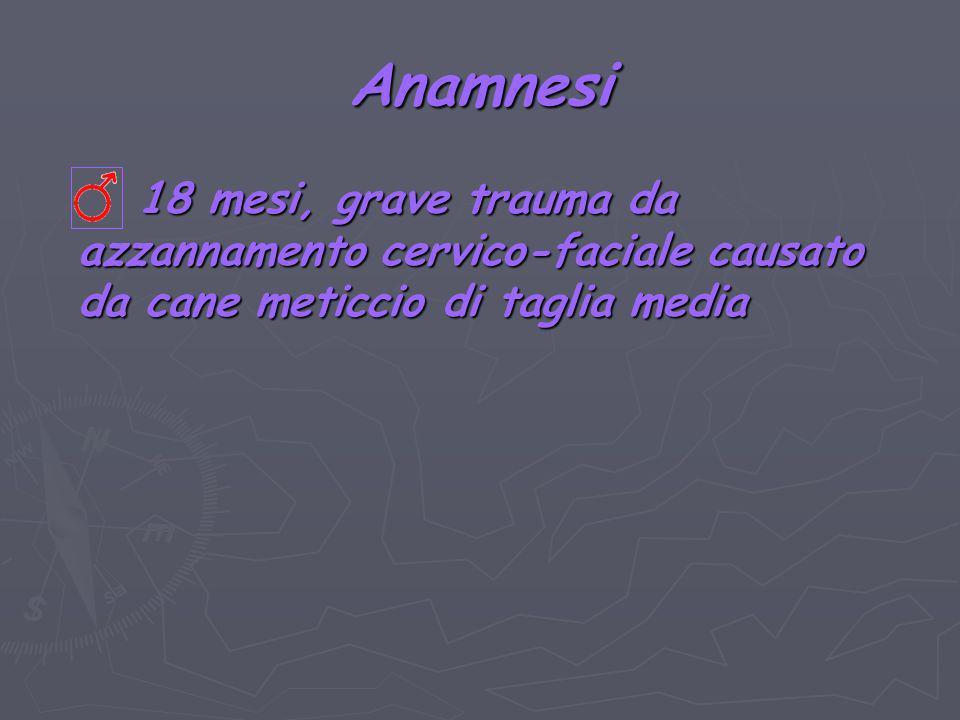 Complicanze Deiscenza della sutura laringea Deiscenza della sutura laringea Sindrome di Claude-Bernard- Horner Sindrome di Claude-Bernard- Horner Plastica laringea (auto-innesti cartilaginei costali) Risoluzione spontanea (2 mesi)