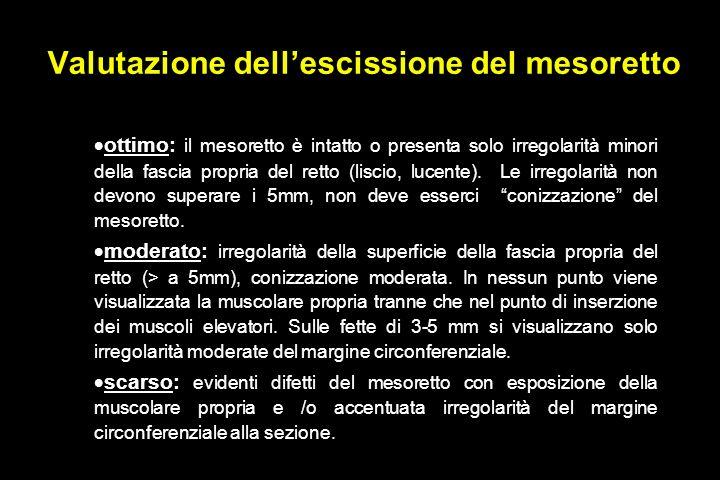Valutazione dellescissione del mesoretto ottimo: il mesoretto è intatto o presenta solo irregolarità minori della fascia propria del retto (liscio, lucente).