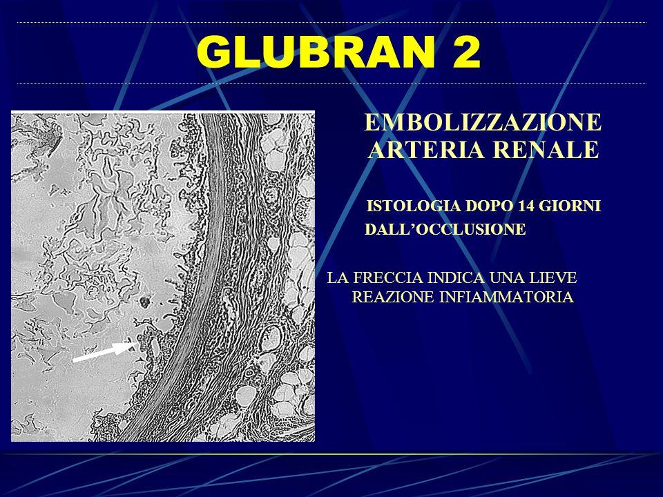 EMBOLIZZAZIONE ARTERIA RENALE ISTOLOGIA DOPO 14 GIORNI DALLOCCLUSIONE LA FRECCIA INDICA UNA LIEVE REAZIONE INFIAMMATORIA GLUBRAN 2
