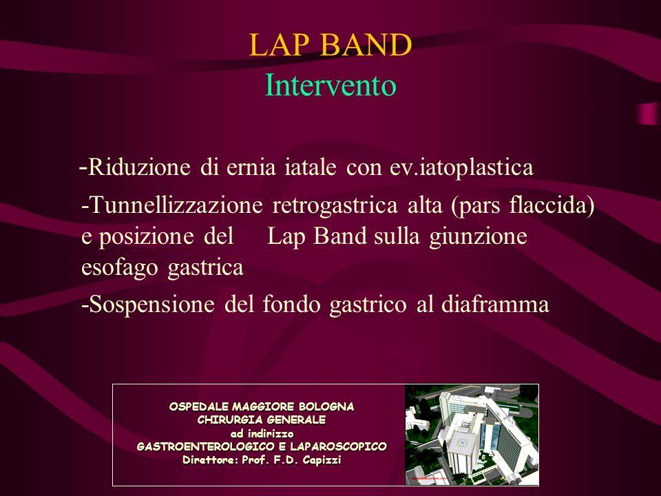 LAP BAND Intervento - Riduzione di ernia iatale con ev.iatoplastica -Tunnellizzazione retrogastrica alta (pars flaccida) e posizione del Lap Band sull