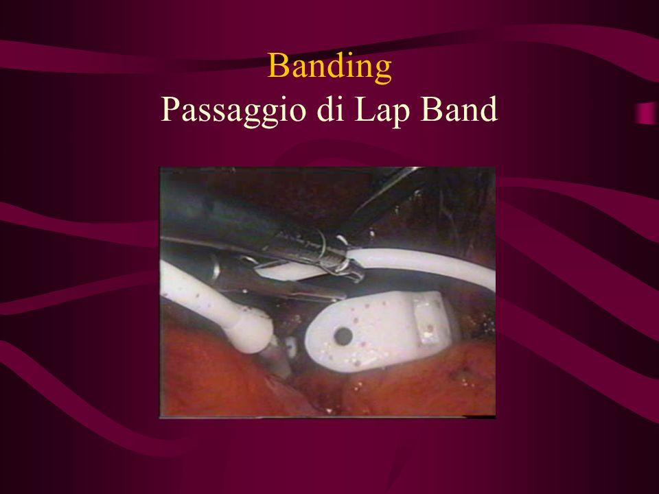 Banding Sospensione fondo gastrico