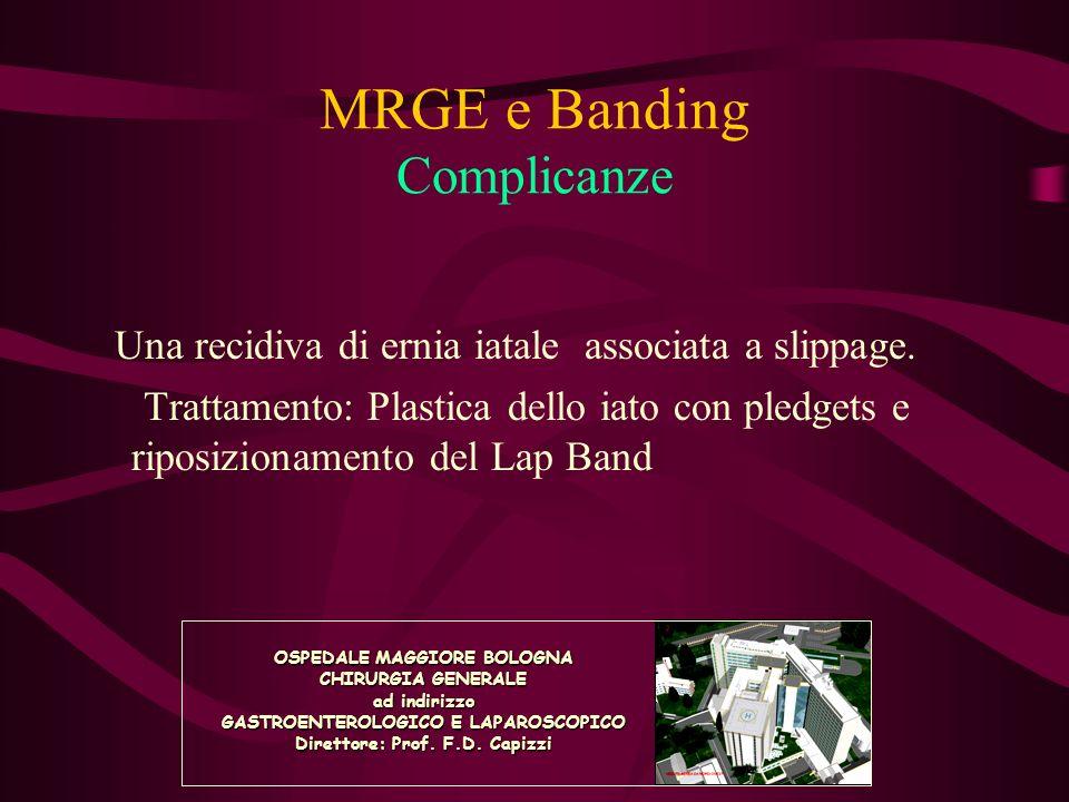 MRGE e Banding Complicanze Una recidiva di ernia iatale associata a slippage. Trattamento: Plastica dello iato con pledgets e riposizionamento del Lap