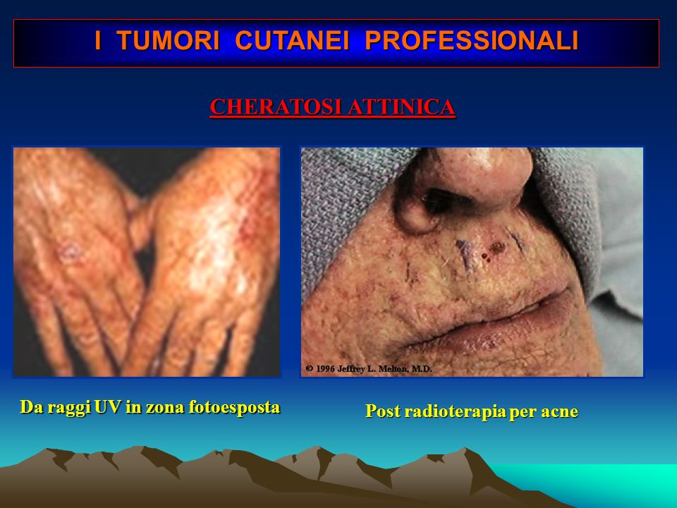 Basalioma su lesioni di cheratosi attinica I TUMORI CUTANEI PROFESSIONALI