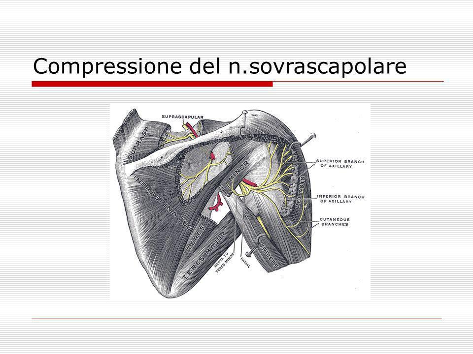 Compressione del n.sovrascapolare