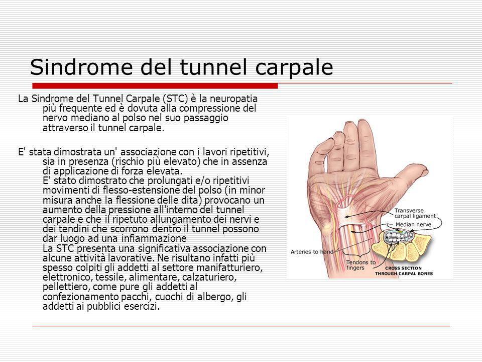 Sindrome del tunnel carpale La Sindrome del Tunnel Carpale (STC) è la neuropatia più frequente ed è dovuta alla compressione del nervo mediano al pols