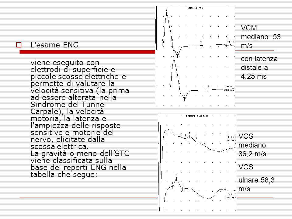 L'esame ENG viene eseguito con elettrodi di superficie e piccole scosse elettriche e permette di valutare la velocità sensitiva (la prima ad essere al