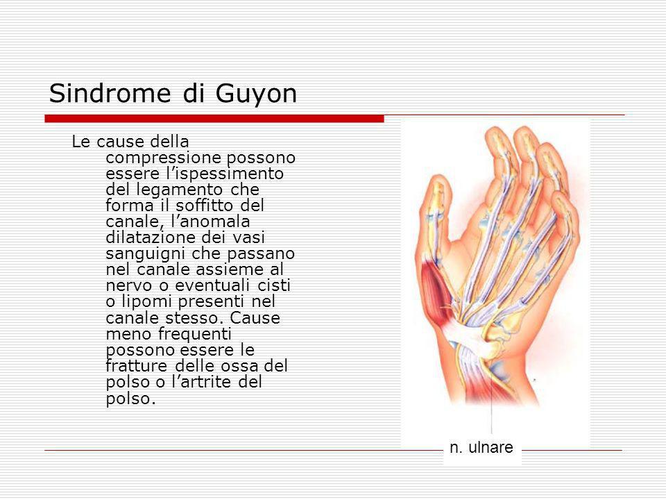 Sindrome di Guyon Le cause della compressione possono essere lispessimento del legamento che forma il soffitto del canale, lanomala dilatazione dei va