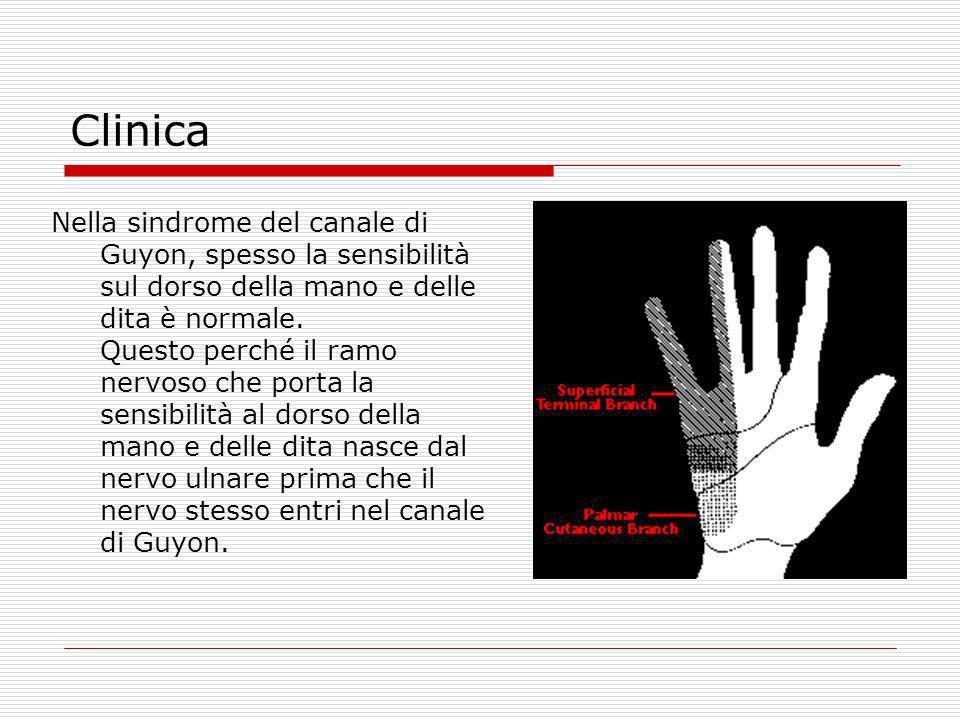 Clinica Nella sindrome del canale di Guyon, spesso la sensibilità sul dorso della mano e delle dita è normale. Questo perché il ramo nervoso che porta