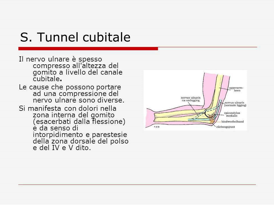 S. Tunnel cubitale Il nervo ulnare è spesso compresso all'altezza del gomito a livello del canale cubitale. Le cause che possono portare ad una compre