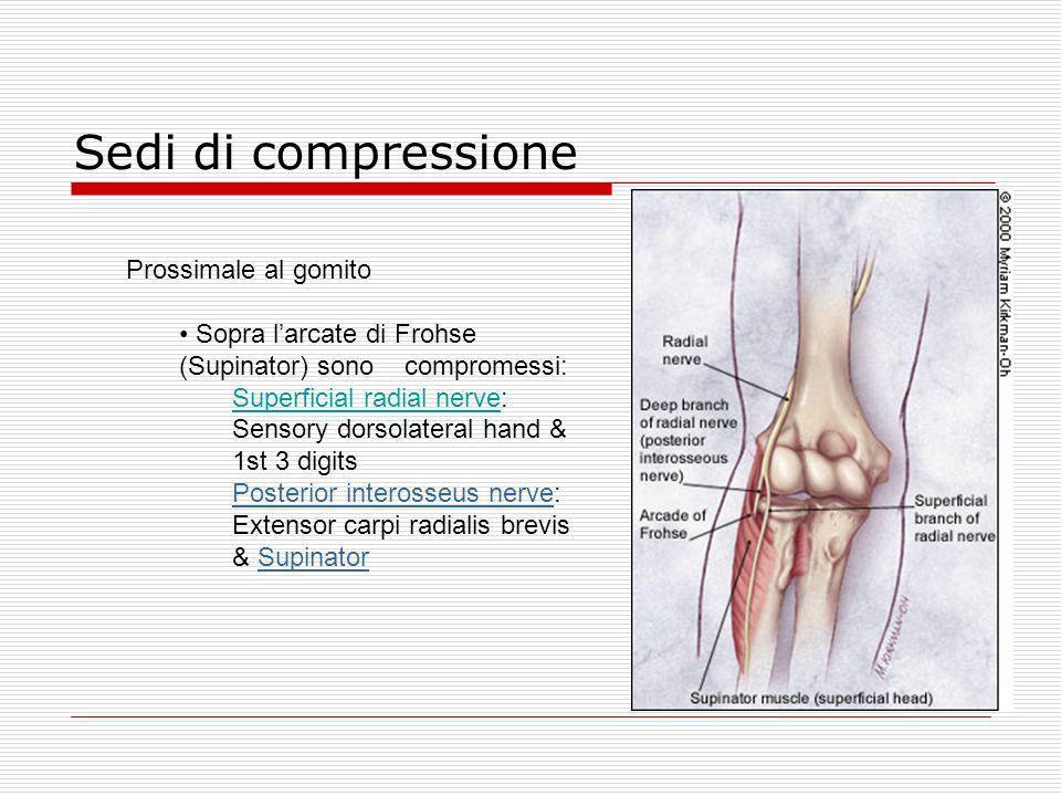 Sedi di compressione Prossimale al gomito Sopra larcate di Frohse (Supinator) sono compromessi: Superficial radial nerve: Sensory dorsolateral hand &