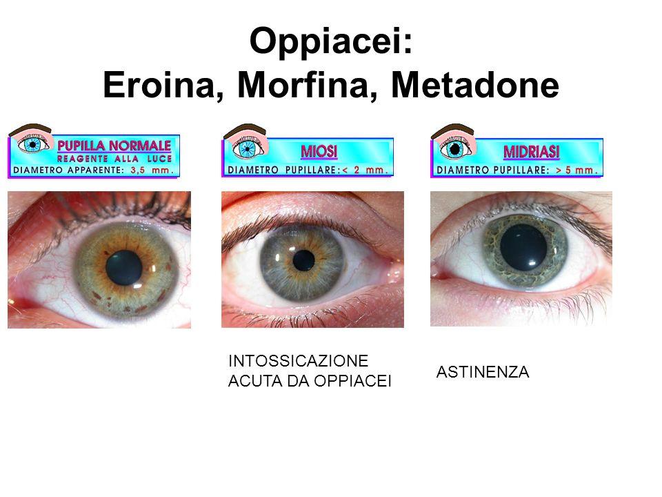 Oppiacei: Eroina, Morfina, Metadone INTOSSICAZIONE ACUTA DA OPPIACEI ASTINENZA