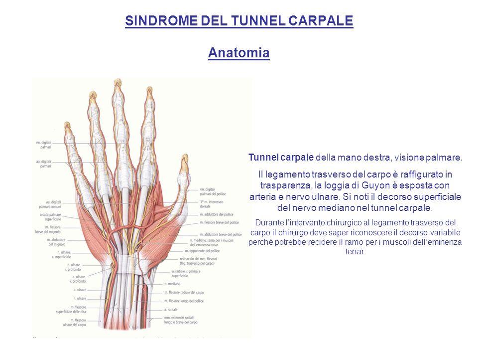 SINDROME DEL TUNNEL CARPALE Anatomia Sezione trasversale della mano destra allaltezza delle ossa del carpo Il tunnel carpale forma un canale osteofibroso, nel quale oltre ai tendini dei muscoli flessori decorre anche il nervo mediano.