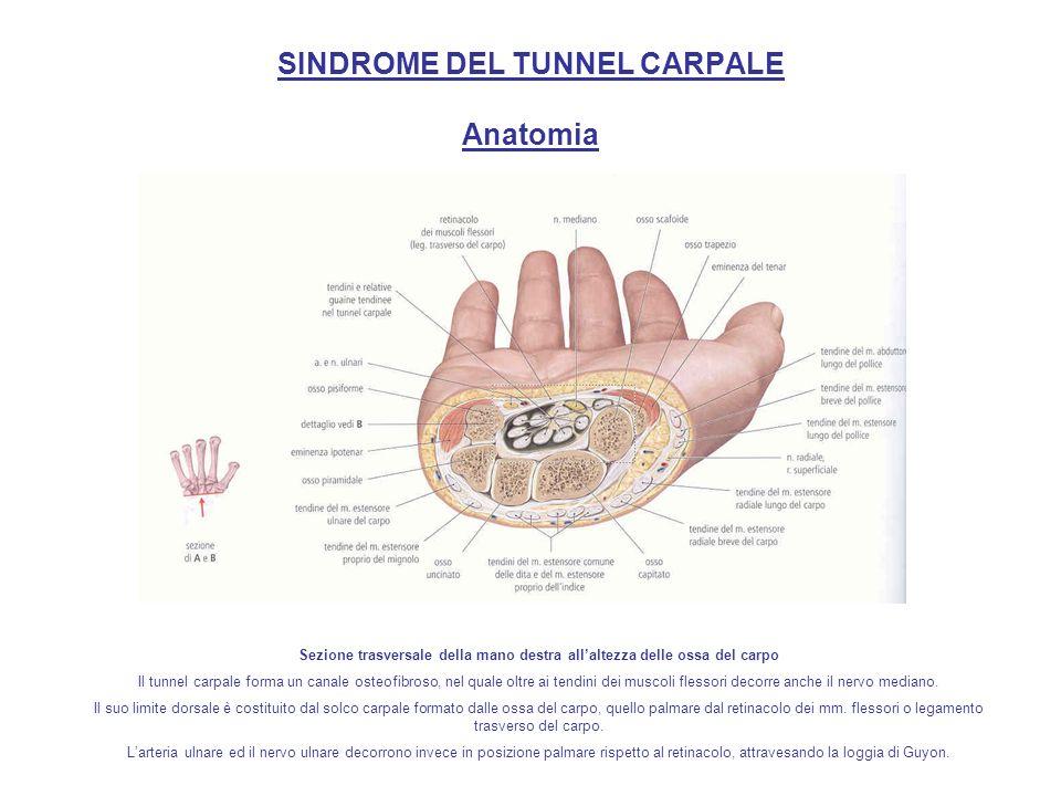 SINDROME DEL TUNNEL CARPALE Anatomia Dettaglio delle guaine tendinee nel tunnel carpale