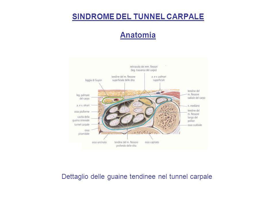 SINDROME DEL TUNNEL CARPALE Segno di Tinel: per confermare la diagnosi di sindrome del tunnel carpale si può suscitare o riprodurre il dolore nel territorio di distribuzione del nervo mediano battendo sul legamento volare del carpo.