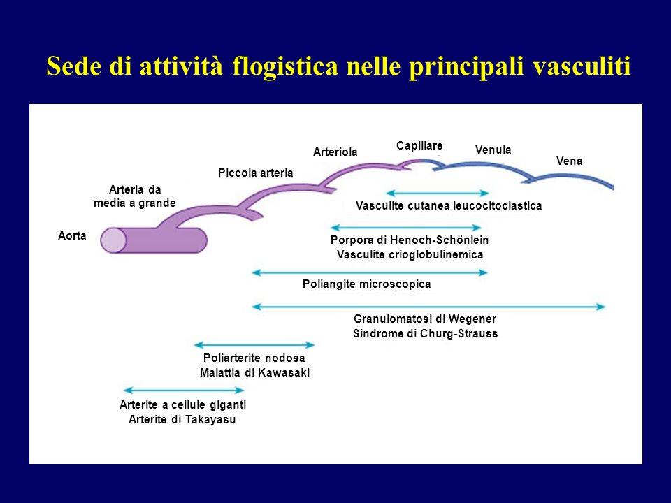 TC: emorragia alveolare Vasculiti dei piccoli vasi