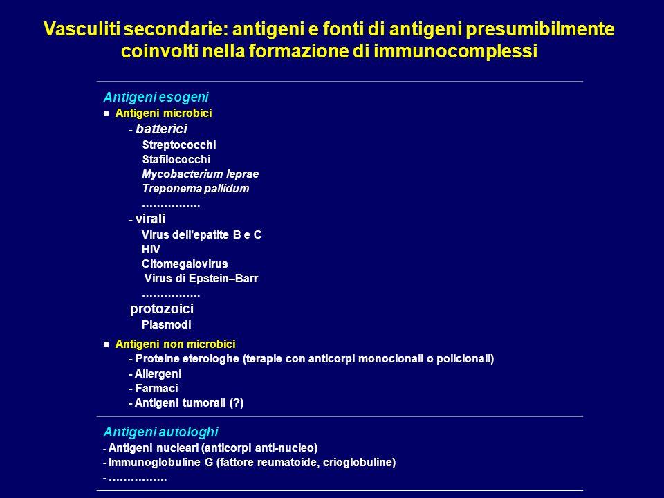 Vasculite di Churg-Strauss Granulomatosi allergica e vasculite di vasi di medio- piccolo calibro, con necrosi fibrinoide, infiltrazione eosinofila e aspetti granulomatosi.