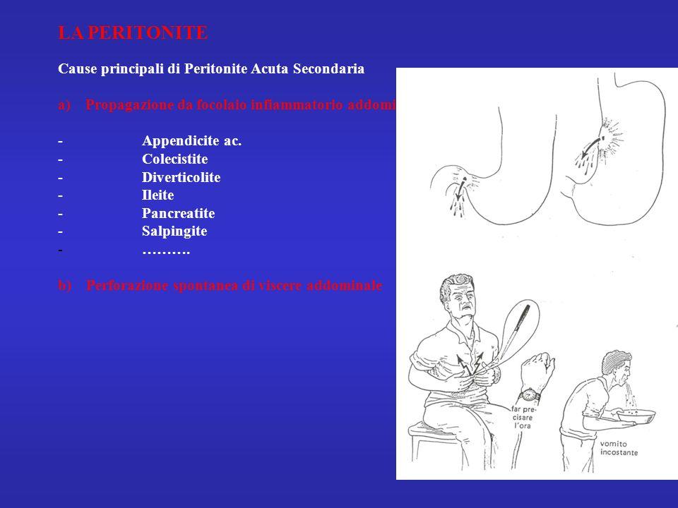 LA PERITONITE Cause principali di Peritonite Acuta Secondaria a) Propagazione da focolaio infiammatorio addominale - Appendicite ac. - Colecistite - D