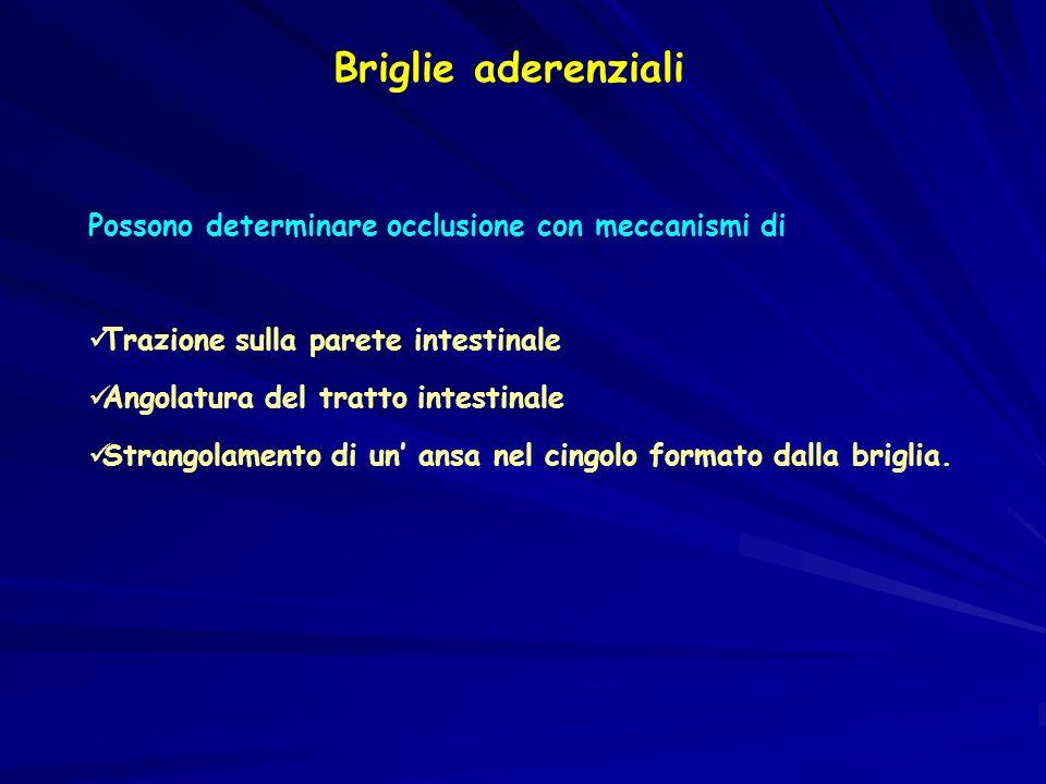 Briglie aderenziali Possono determinare occlusione con meccanismi di Trazione sulla parete intestinale Angolatura del tratto intestinale Strangolamento di un ansa nel cingolo formato dalla briglia.