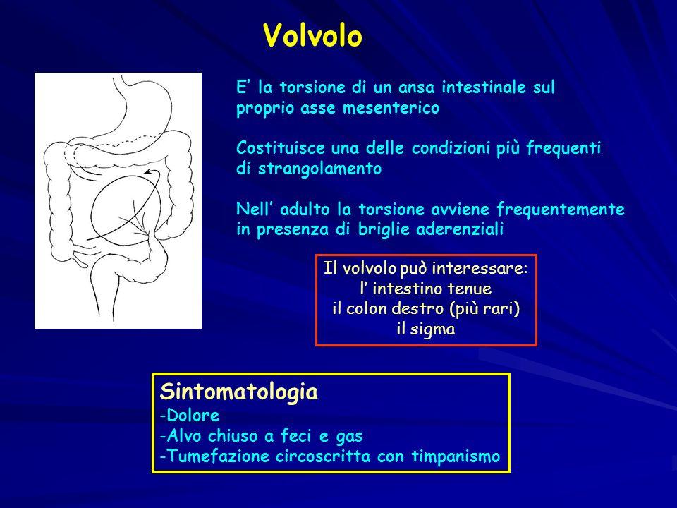 Volvolo E la torsione di un ansa intestinale sul proprio asse mesenterico Costituisce una delle condizioni più frequenti di strangolamento Nell adulto