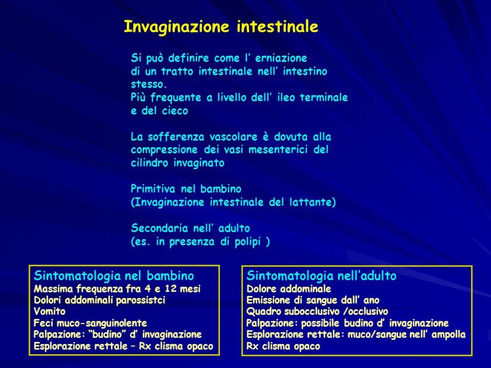 Invaginazione intestinale Si può definire come l erniazione di un tratto intestinale nell intestino stesso. Più frequente a livello dell ileo terminal