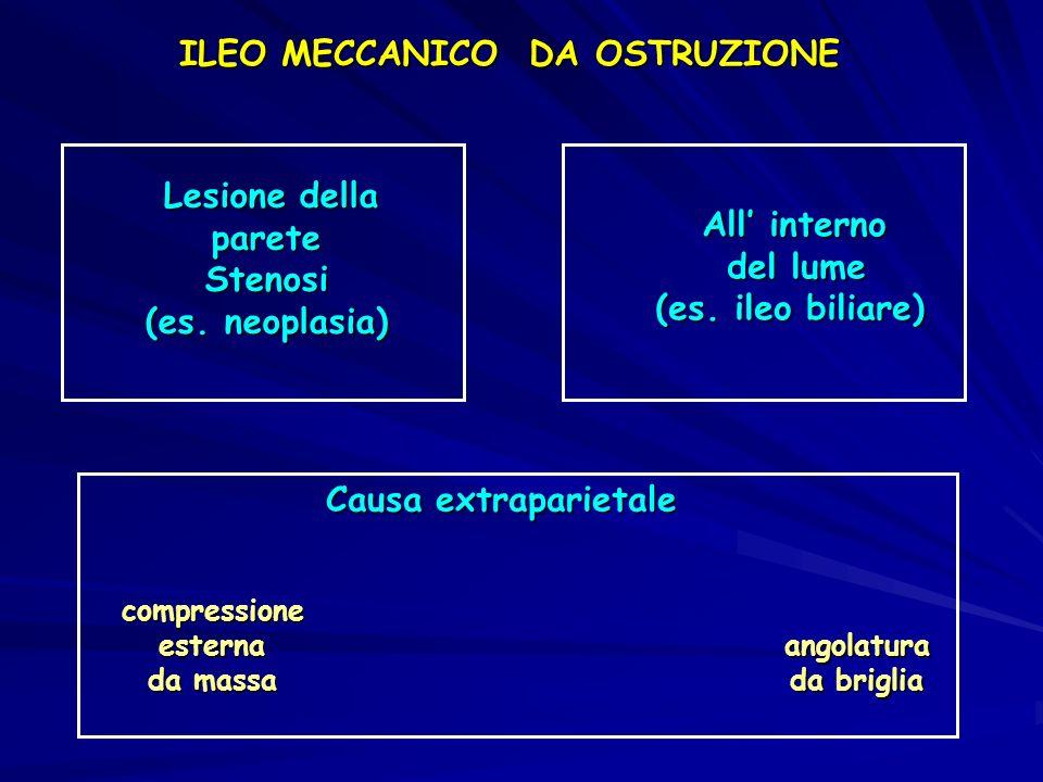 ILEO MECCANICO DA OSTRUZIONE Lesione della Lesione dellapareteStenosi (es. neoplasia) All interno All interno del lume (es. ileo biliare) Causa extrap