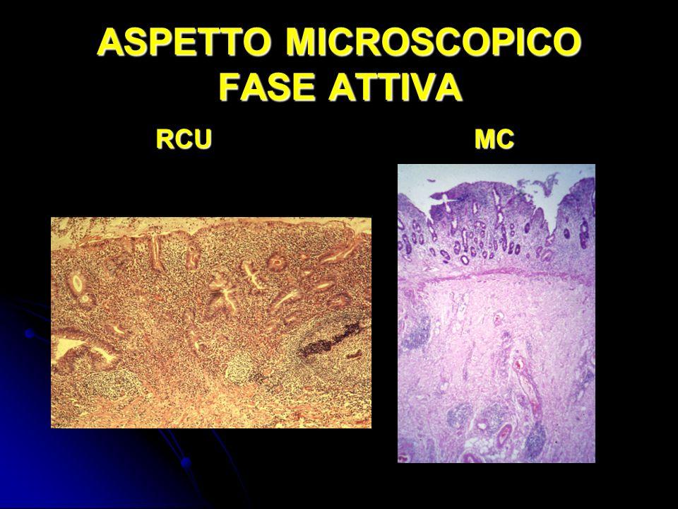 ASPETTO MICROSCOPICO FASE ATTIVA RCUMC