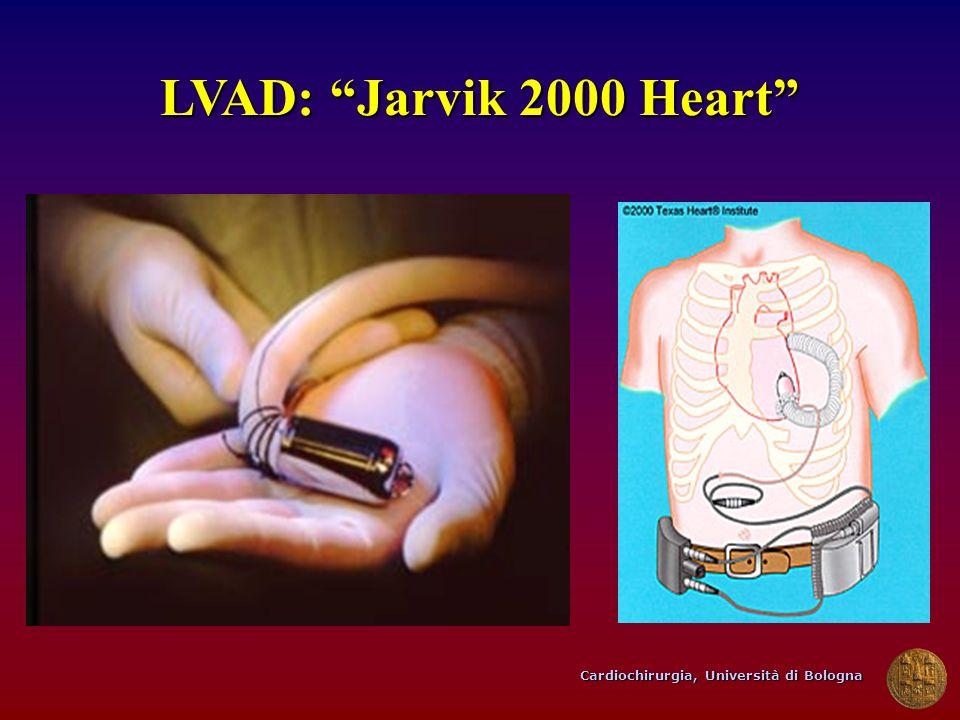 Cardiochirurgia, Università di Bologna LVAD: Jarvik 2000 Heart