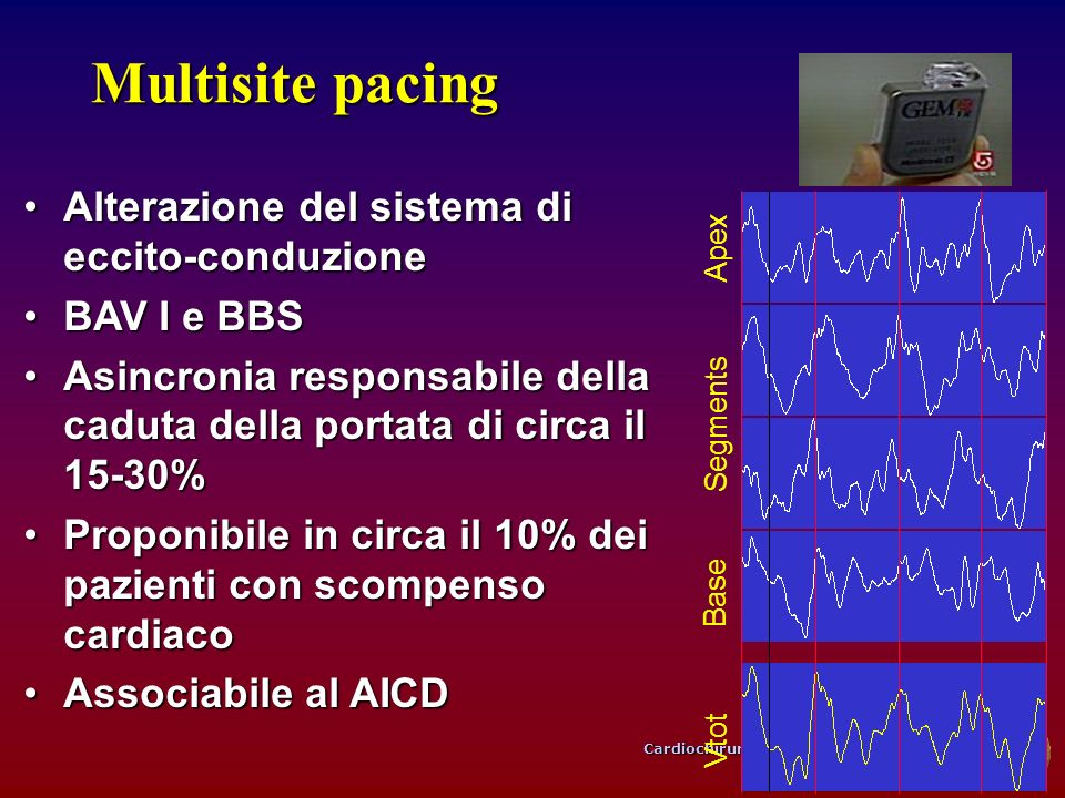Cardiochirurgia, Università di Bologna Multisite pacing Alterazione del sistema di eccito-conduzioneAlterazione del sistema di eccito-conduzione BAV I