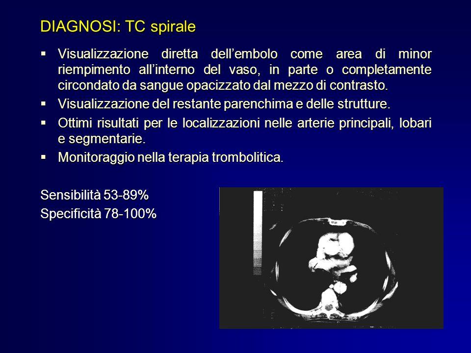 DIAGNOSI: TC spirale Visualizzazione diretta dellembolo come area di minor riempimento allinterno del vaso, in parte o completamente circondato da san