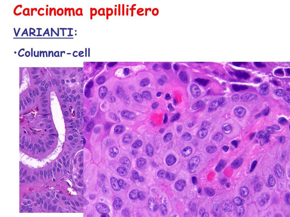 Carcinoma papillifero VARIANTI: Columnar-cell