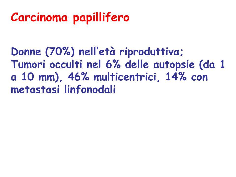 Carcinoma follicolare Minimamente invasivo Capsula spessa Simile a adenoma foll > cellule > mitosi Invasione capsula (diagnosi difficile con FNAB); angioinvasione IHC: simile a adenoma (vim, low-weight ck, tireoglobulina) PROGNOSI:metastasi via ematica (polmone, ossa, snc, fegato); prognosi buona