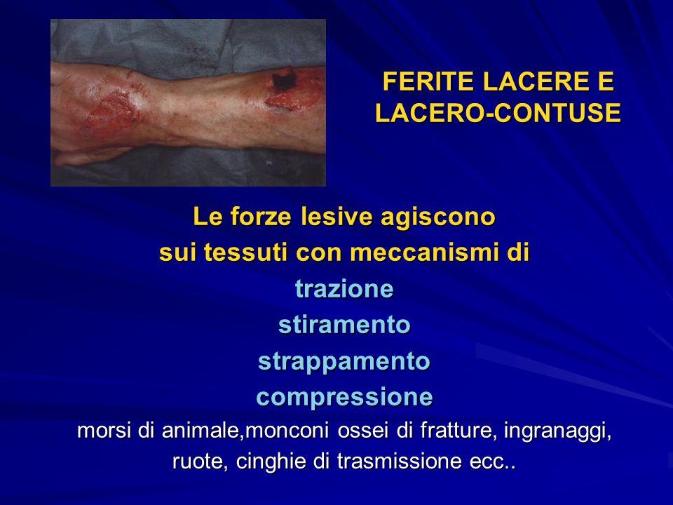 FERITE LACERE E LACERO-CONTUSE Le forze lesive agiscono sui tessuti con meccanismi di trazionestiramentostrappamentocompressione morsi di animale,monc
