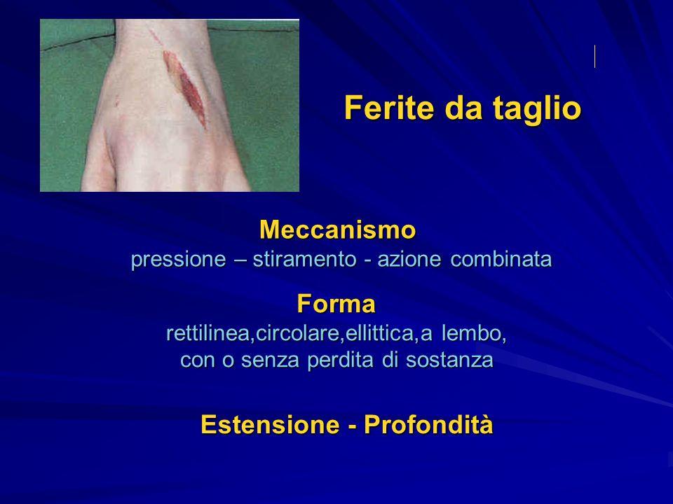 Ferite superficiali o semplici Ferite complesse con perdita di sostanza a lembo penetranti Aspetto macroscopico margini, fondo, estremi (codette) Ferite da taglio