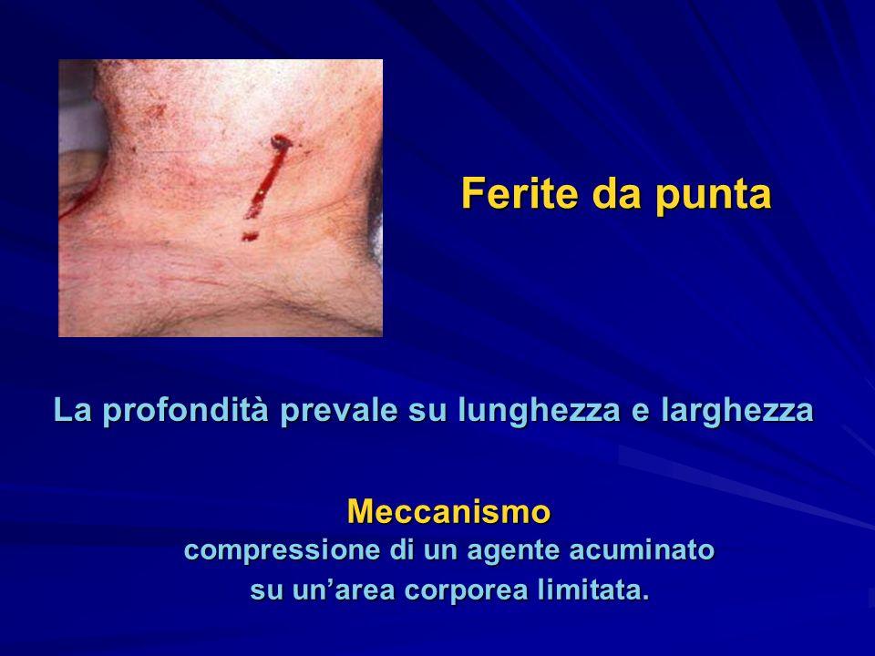 SuperficialiComplesse con interessamento di vasi e/o nervi PenetrantiTrapassantiTransfosse Classificazione delle ferite da punta