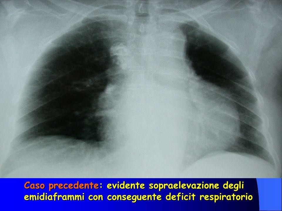 Caso precedente: evidente sopraelevazione degli emidiaframmi con conseguente deficit respiratorio