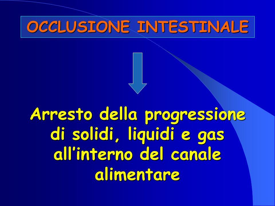 OCCLUSIONE INTESTINALE Arresto della progressione di solidi, liquidi e gas allinterno del canale alimentare