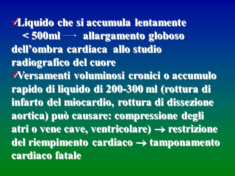 Liquido che si accumula lentamente < 500ml allargamento globoso dellombra cardiaca allo studio radiografico del cuore Versamenti voluminosi cronici o