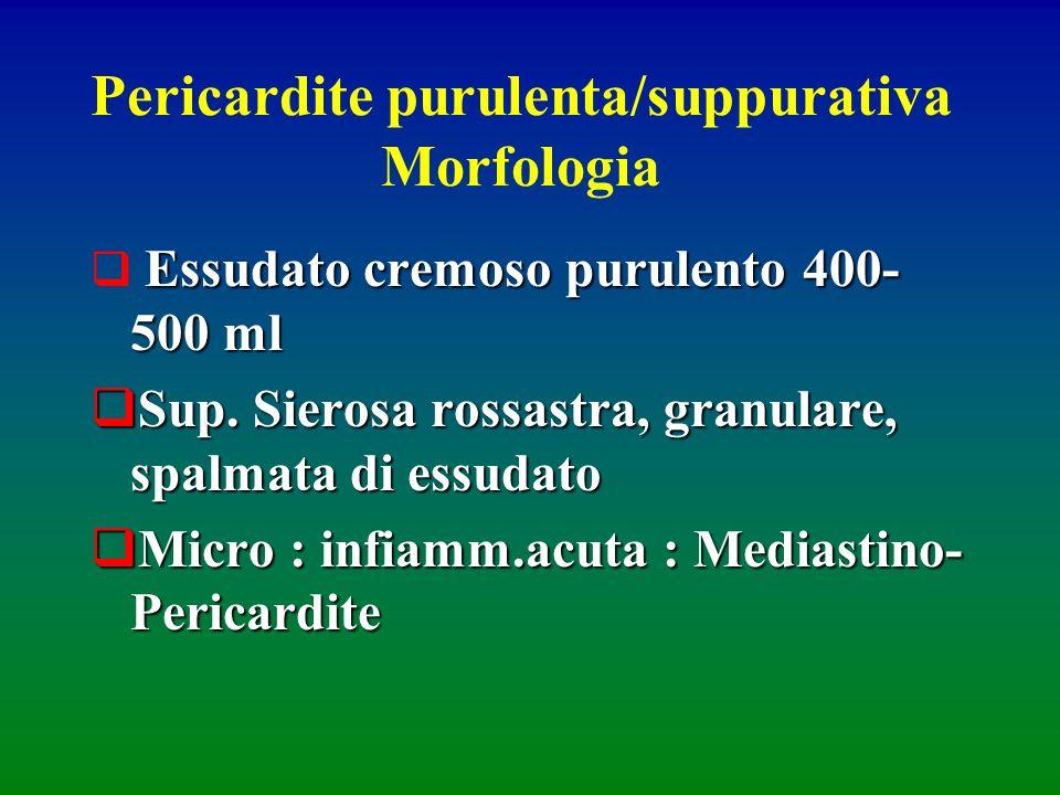 Pericardite purulenta/suppurativa Morfologia Essudato cremoso purulento 400- 500 ml Sup. Sierosa rossastra, granulare, spalmata di essudato Sup. Siero