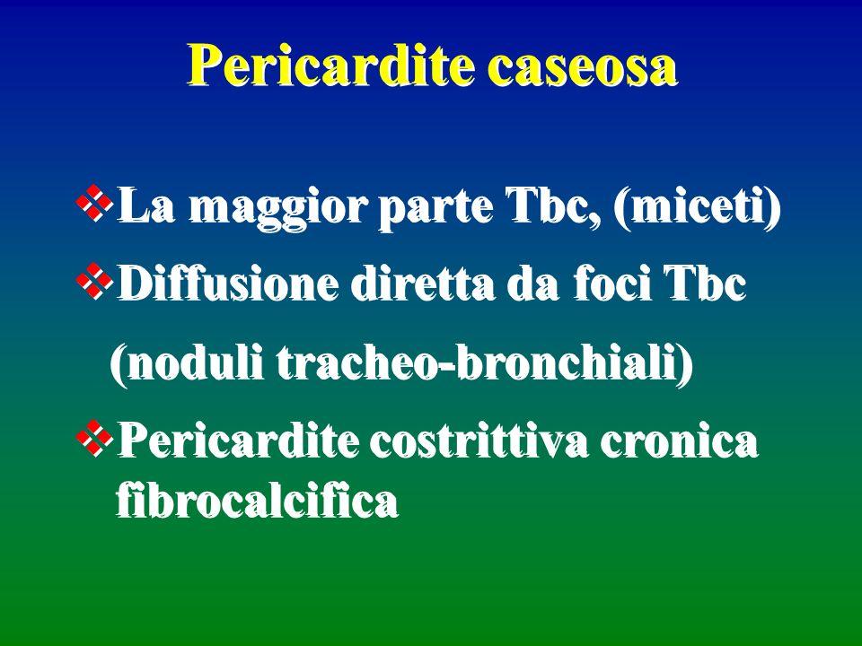 Pericardite caseosa La maggior parte Tbc, (miceti) Diffusione diretta da foci Tbc (noduli tracheo-bronchiali) Pericardite costrittiva cronica fibrocal