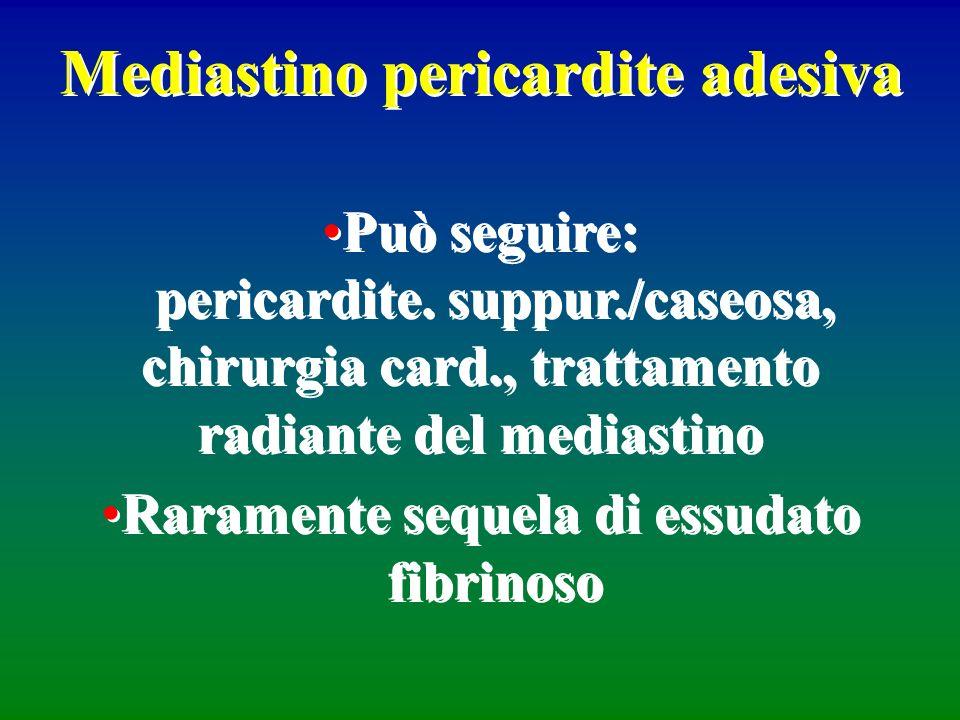 Mediastino pericardite adesiva Può seguire: pericardite. suppur./caseosa, chirurgia card., trattamento radiante del mediastino Raramente sequela di es