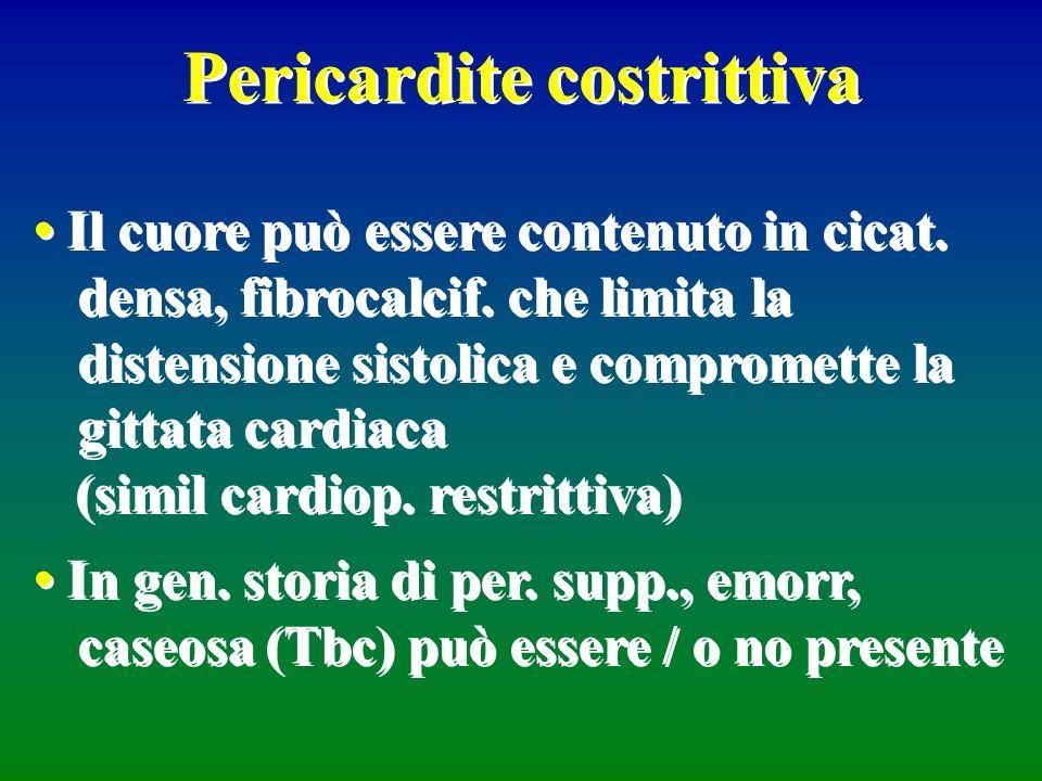 Pericardite costrittiva Il cuore può essere contenuto in cicat. densa, fibrocalcif. che limita la distensione sistolica e compromette la gittata cardi