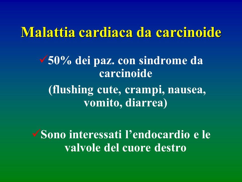 Malattia cardiaca da carcinoide 50% dei paz. con sindrome da carcinoide (flushing cute, crampi, nausea, vomito, diarrea) Sono interessati lendocardio