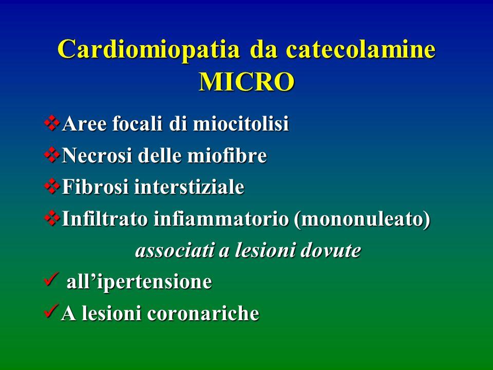Cardiomiopatia da catecolamine MICRO Aree focali di miocitolisi Aree focali di miocitolisi Necrosi delle miofibre Necrosi delle miofibre Fibrosi inter