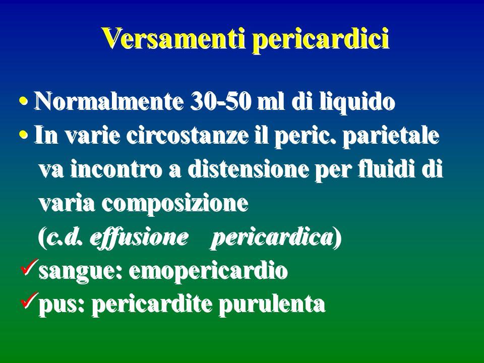 Versamenti pericardici Normalmente 30-50 ml di liquido In varie circostanze il peric. parietale va incontro a distensione per fluidi di varia composiz